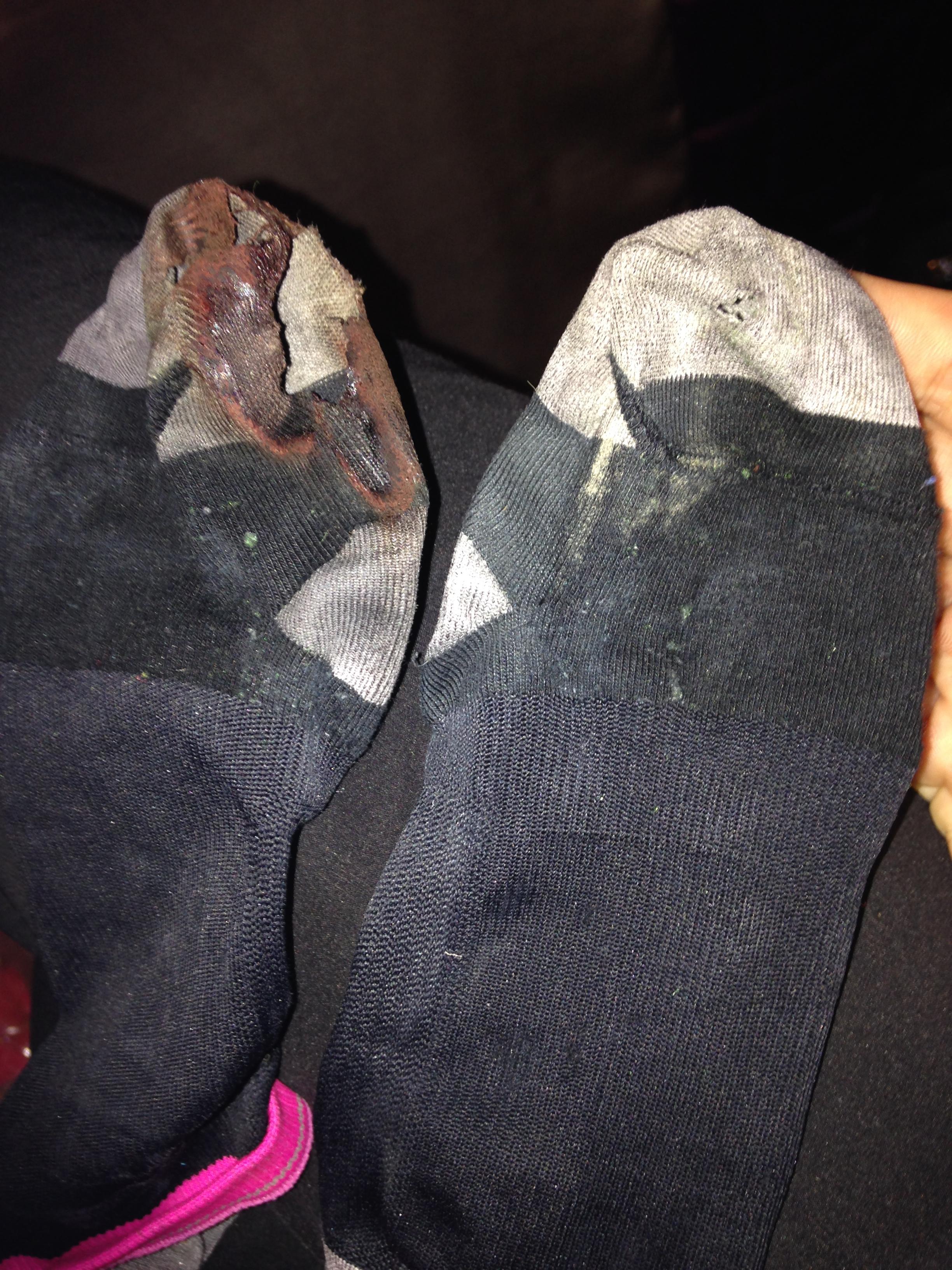 19新品靴下レースで穴があく